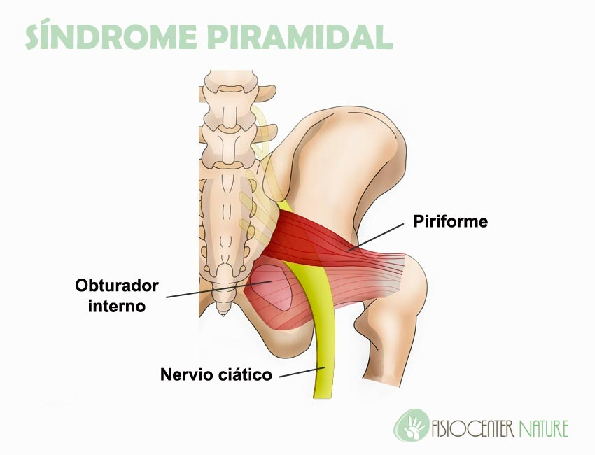 sindrome_piramidal
