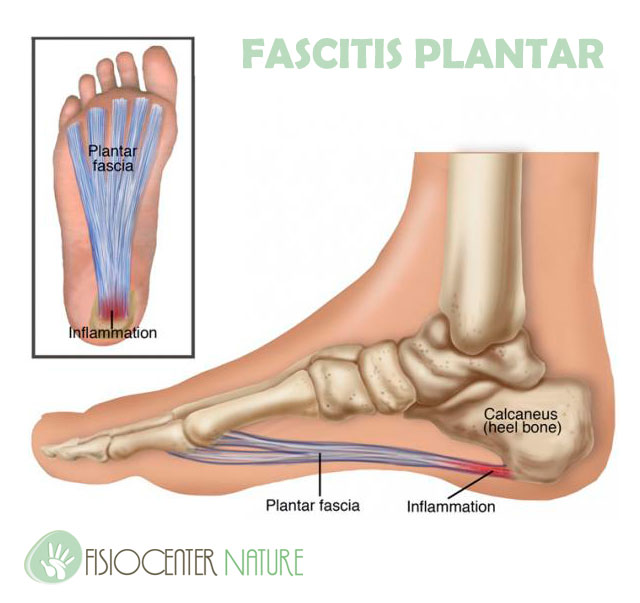 fascitis_plantar