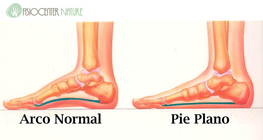 El uso de plantillas en ni os con pies planos for Pie de plano arquitectonico
