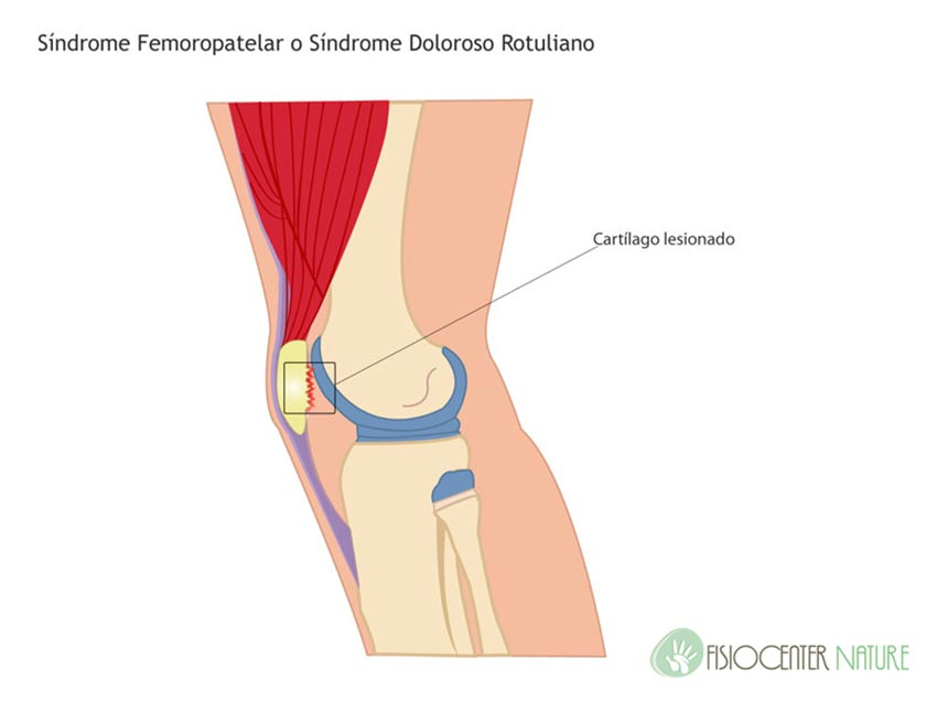 Lesiones frecuentes en corredores: síndrome femoropatelar ...