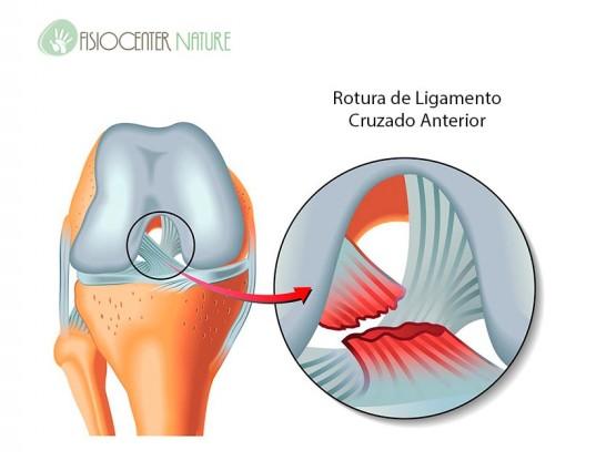 rotura-ligamentos-cruzado